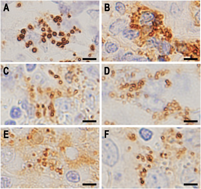 Higher magnification of small round bodies detected in the lymphatic sinus of sarcoid lymph nodes by IHC with each antibody. A: IHC with PAB antibody after MT treatment, B: IHC with anti-IgG antibody, C: IHC with anti-IgA antibody, D: IHC with anti-IgM antibody, E: IHC with anti-C1q antibody, and F: IHC with anti-C3c antibody. Note that the dark brown-colored reaction products produced by each antibody are all located along the peripheral rim of the small round bodies. Scale bar: 5 μm.