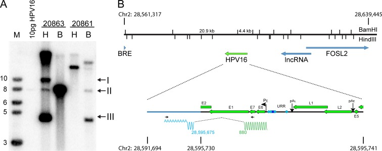 20861 cells have multiple, rearranged copies of HPV16 at the integration site. A, Southern blot analysis of 20861 and 20863 W12 cell lines. Genomic DNA was digested with either HindIII (H; does not cut HPV16 DNA) or BamH1 (B; a single cut in HPV16 DNA). DNA fragments were separated by electrophoresis, transferred to membranes and probed with 32P-labeled HPV16 DNA. Arrows indicate relaxed circle (I), unit length linear (II), and supercoiled HPV16 genomes (III). Viral copy number was quantified by comparison to 10 pg linearized HPV16 DNA. The position of BamHI and HindIII cleavage sites spanning the integrated locus (chr2:28,561,317–28,639,445; hg19) and expected band sizes from Southern blot are shown in B . B, Diagram of the integration locus of HPV16 in 20861 cells. APOT analysis showed that HPV16 was integrated into chr2 p23.2 and expresses an E6/E7 fusion transcript that splices to an exon located at 28,595,425–28,595,675 (hg19). The wavy line underneath the expanded viral genome represents the fusion transcript. Primer positions are denoted by black horizontal arrows. Green represents viral sequences, and blue represents host-derived sequences. Splice donor (viral) and acceptor (host) sites are indicated below.