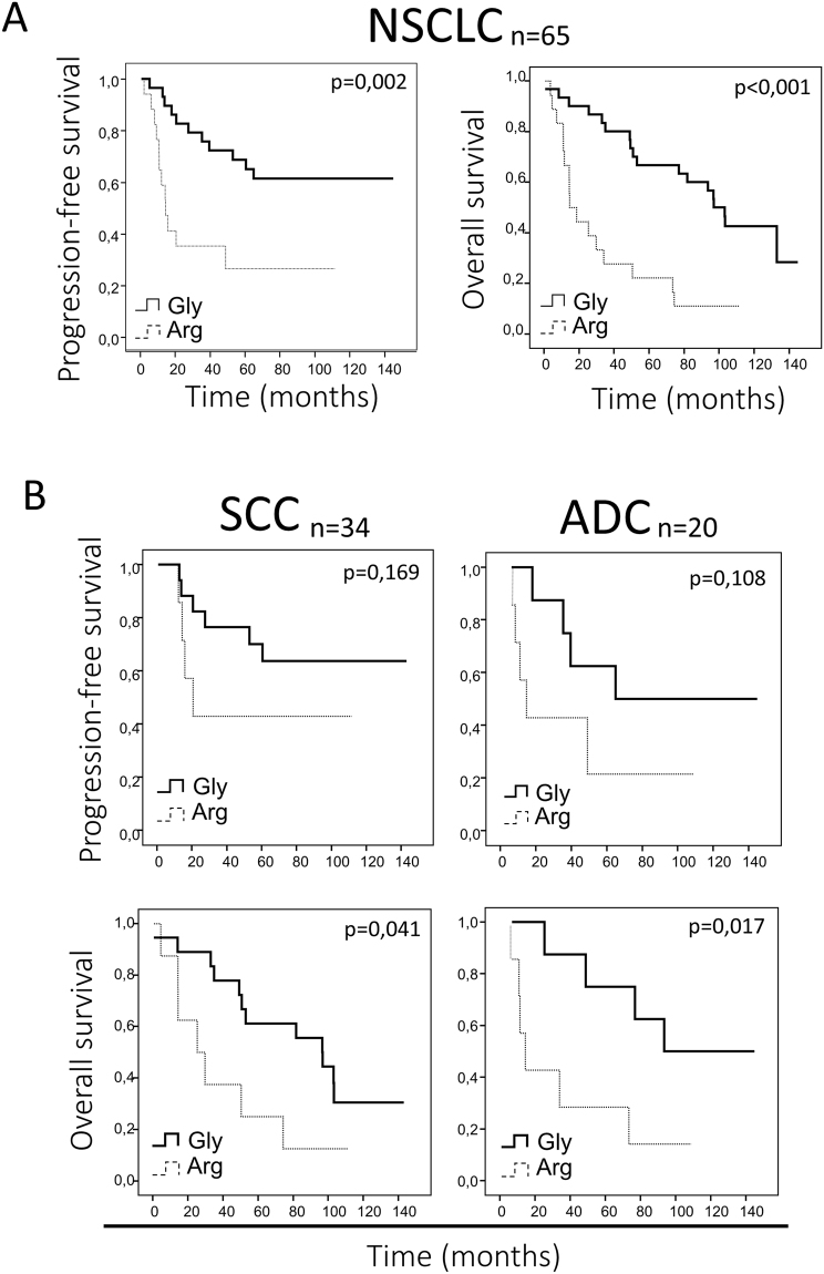 Correlation of FGFR4 variant and prognosis in high FGFR4 mRNA expressing NSCLC patients. ( A ) Overall and progression-free survival curves for high FGFR4 mRNA expressing patients, according to the FGFR4 variant in the whole NSCLC cohort. ( B ) Overall and progression-free survival analysis of SCC and ADC patient subsets depending on the FGFR4 variant, taking into account exclusively the groups with high FGFR4 mRNA expression. Gly = FGFR4-388Gly, Arg = FGFR4-388Arg.
