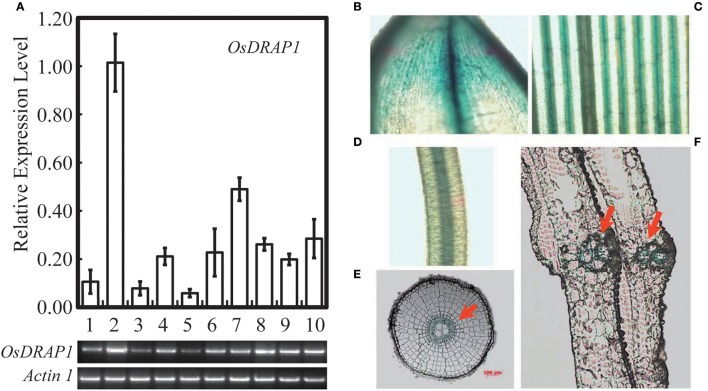 Expression model of OsDRAP1 in different tissues of rice, in which (A) the transcript levels were determined by qRT-PCR and semi RT-PCR, OsDRAP1 transcript levels in young panicles (1), matured leaves (2), leaf sheaths (3), nodes (4), internodes (5), stem bases (6), matured roots (7), young leaves (8), young roots (9) and callus (10) with Actin1 used as the reference gene. The OsDRAP1 expression in different tissues of the OsDRAP1-Pro::GUS transgenic rice plants by GUS staining analysis, in the shell (B) , leaf blade (C) , root (D) , root cross section (E) and sheath cross section (F) with red arrows indicating the vascular bundles (the scale bars are in 100 μm).