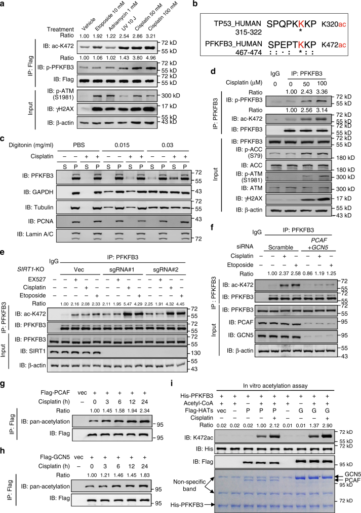 Cisplatin induces K472 acetylation and S461 phosphorylation of PFKFB3. a DNA damage signals induced PFKFB3 K472 acetylation. Flag-tagged PFKFB3 was expressed in HEK293T cells, which were then treated with etoposide (10 μM), adriamycin (1 μM), UV irradiation (10 J/m 2 ) and cisplatin (50 or 100 μM) for 24 h. Flag-PFKFB3 was immunoprecipitated with Flag beads and immunoblotting was performed with the antibodies indicated. Relative PFKFB3 K472 acetylation and phosphorylation were normalized by Flag protein. b The amino acid sequence near K472 of PFKFB3 displays high similarity with the sequence near K320 of TP53. c Cisplatin treatment induces PFKFB3 cytoplasmic accumulation. HEK293T cells were treated with or without cisplatin (50 μM) for 24 h before harvest. Cells were then suspended in PBS and treated with a gradient concentration of digitonin. Supernatant and precipitate were collected for immunoblotting with indicated antibodies. S, supernatant; P, precipitate. d Cisplatin induces K472 acetylation and S461 phosphorylation of endogenous PFKFB3. Endogenous PFKFB3 protein was purified from HEK293T cells after cisplatin treatment as indicated for 24 h. e Cisplatin or etoposide treatment enhances K472 acetylation in SIRT1 knockout cells. Endogenous PFKFB3 protein were purified from WT or SIRT1 knockout HEK293T cells treated with EX527 (10 μM), cisplatin (50 μM) or etoposide (10 μM) for 24 h. f Combined knockdown of PCAF and GCN5 abolishes cisplatin- or etoposide-induced PFKFB3 K472 acetylation. HEK293T cells were transfected with siRNAs targeting PCAF and GCN5. After 60 h, cells were treated with cisplatin (50 μM) or etoposide (10 μM) for 24 h. g , h Cisplatin treatment induces pan-acetylation of PCAF and GCN5. Flag-tagged PCAF or GCN5 was expressed in HEK293T cells, which were treated with cisplatin for the duration indicated at a concentration of 50 μM. Relative pan-acetylation level of PCAF or GCN5 was normalized by Flag protein. i Cisplatin increases acetyltransfera