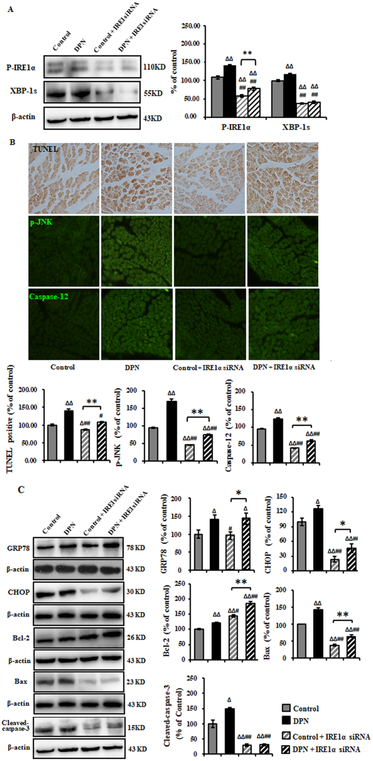 Inhibition of ER stress-related apoptosis in the sciatic nerve of DPN rats by intrathecal injection of IRE1α siRNA. ( A ) Representative Western blots using tissue extracts from the sciatic nerve and probed with antibodies against P-IRE1α and XBP-1s. β-actin was probed as loading control. The intensity is expressed as mean ± SEM of the percentage of the respective controls and analyzed using one-way ANOVA with LSD analysis or unpaired Student's t-test. ( B ) TUNEL, p-JNK, and Caspae-12 were effectively eliminated as measured by immunohistochemistry method. Data are expressed as mean ± SEM of the percentage of the respective controls and analyzed using one-way ANOVA with Tamhane's T2 analysis or unpaired Student's t-test. ( C ) Representative Western blots using tissue extracts from the sciatic nerve and probed with antibodies against GRP78, CHOP, Bcl-2, <t>Bax</t> and <t>Cleaved-Caspase-3.</t> β-actin was probed as loading control. Results of are expressed as mean ± SEM indicated as percentage of the respective controls and analyzed using one-way ANOVA with LSD analysis (GRP78, Cleaved-Caspase-3, CHOP) or Tamhane's T2 analysis (Bcl-2, Bax) or unpaired Student's t-test. Δ P
