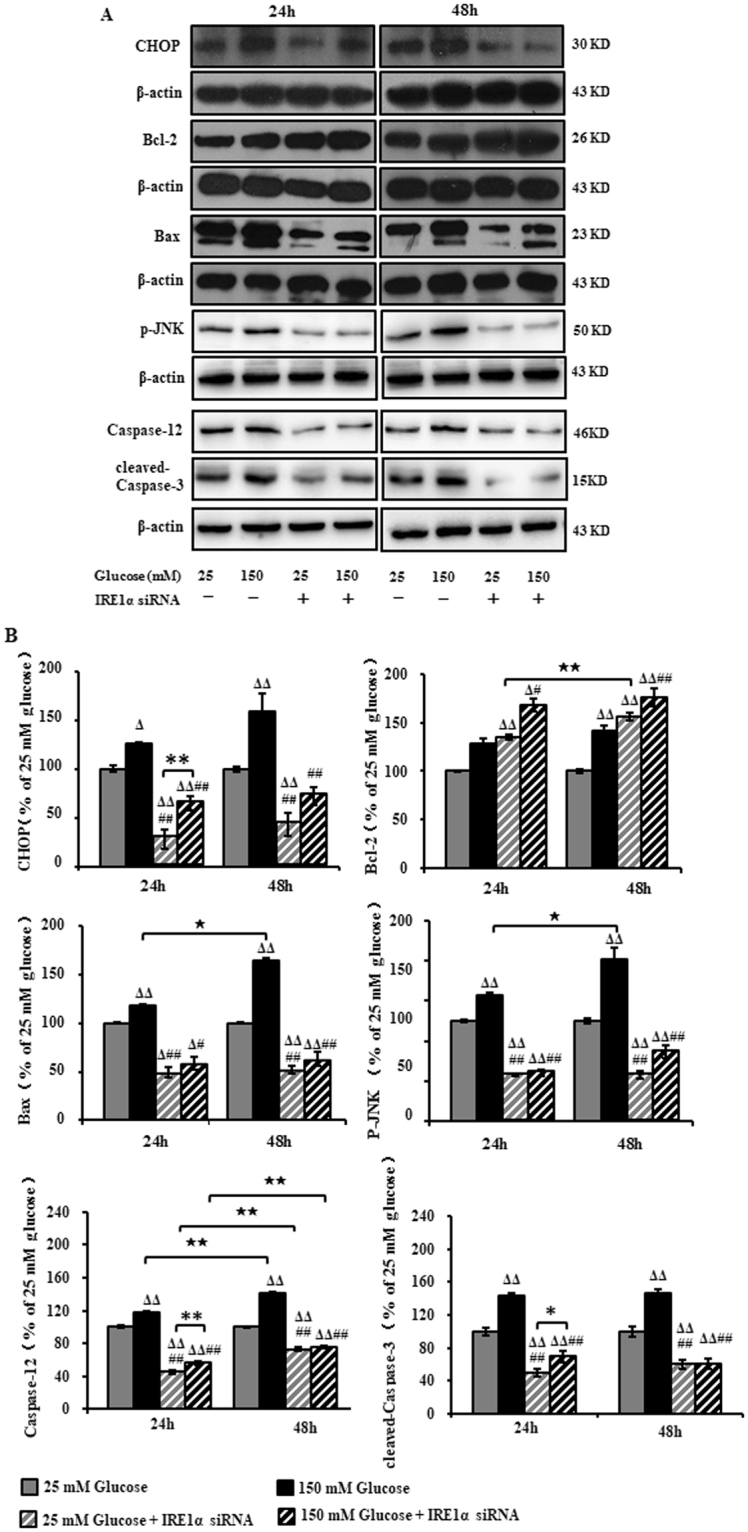 Expression of CHOP, Bcl-2, Bax, p-JNK, Caspase-12 and cleaved-Caspase-3 in RSC96 cells after IRE1α siRNA transfection and exposure to high glucose. ( A ) Representative Western blots using tissue extracts from the sciatic nerve and probed with antibodies against CHOP, Bcl-2, Bax, p-JNK, Caspase-12 and cleaved-Caspase-3. ( B ) The band intensity expressed as mean ± SEM of the percentage of the respective 25 mM glucose-treated cells and analyzed using one-way ANOVA with LSD analysis (CHOP, Bcl-2/48 h, Bax/48 h, p-JNK/24 h, Caspase-12, cleaved-Caspase-3,) or Tamhane's T2 analysis (p-JNK/48 h, Bcl-2/24 h, Bax/24 h, Caspase-3/24 h,). Δ P