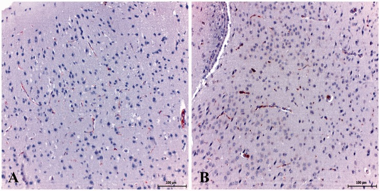 GMF-β immunoreactivity in the healthy control group. (a, b) Low expression of GMF-β in some glial cells. Immunohistochemistry method. <t>(Streptavidin-</t> biotin) (anti-GMF-β), Mayer's haematoxylin counterstain. Scale bar, 100 µm