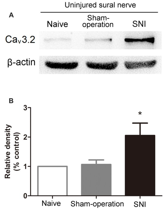 Increased expression of Ca v 3.2 T-type calcium channel proteins in the uninjured sural nerve after SNI. (A) Representative Western blot bands of Ca v 3.2 T-type calcium channel proteins (molecular weight: 260 kDa) 14 days after SNI. (B) Statistical analysis of the relative band densities of Ca v 3.2 protein. β-actin is used as an internal control. Note that the expression of Ca v 3.2 T-type calcium channel protein in ipsilateral sural nerve increased in SNI rats compared with Sham-operation rats. * p