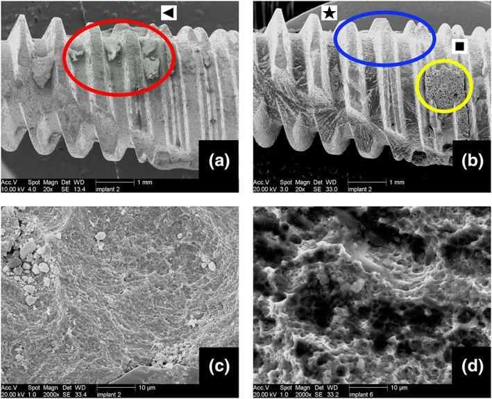 """(a) Pretreatment photo of the implant showing calculus on the threads (red circle [triangle]). (b) Posttreatment photo of the same implant after """"erythritol cleaning + low coating."""" Large calculus is removed (blue circle [star]); however, some powder accumulations are visible on the treated implant surface (yellow circle [square]). (c) Large magnification Scanning electron microscopy photo showing the powder particles embedded on the surface of the same implant. (d) Large magnification scanning electron microscopy photo of another implant showing the biofilm remnant and powder particles on the surface"""