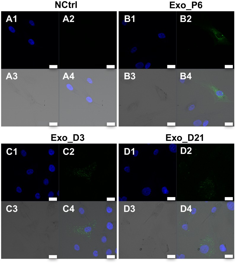 Internalisation of exosomes in hMSCs. Confocal micrographs of hMSCs incubated for 24h with A) PBS (negative control); B) Exo_P6; C) Exo_D3 and D) Exo_D21. PKH67-stained exosomes are detected mainly in the cytoplasm of some of the cells. The intensity varied between individual cells. No PKH67-stained material was found in the negative control. A1-D1, blue channel; A2-D2, green channel; A3-D3, transmission (TD) channel; A4-D4, merged channels. Blue, DAPI-stained nucleus; Green, PKH67-stained exosomes. Scale bar: 20 μm.