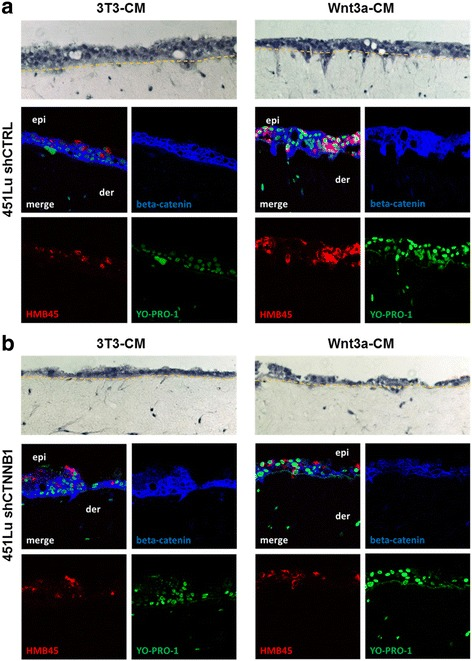 Wnt3a induces invasive growth of melanoma cells in organotypic tissue skin reconstructs (TSR). a 451 LU melanoma cells were seeded together with HaCat epidermal cells onto a layer of collagen I embedded human fibroblasts. TSR exposed to Wnt3a conditioned medium (Wnt3a-CM) showed a pronounced invasive morphology in the H E staining (upper pictures) when compared to cells exposed to control medium (3T3-CM). Immunofluorescence stainings for HMB45 (red) and beta-catenin (blue) identified melanoma cells (HMB45+), revealed beta-catenin expression levels and verified the invasion of single 451 LU cells from the epidermis (epi) into the dermal part (der). Nuclei were stained with YO-PRO-1 (green). b Knockdown of beta-catenin (blue) with shRNA (shCTNNB1) reduced the invasion of 451 LU melanoma cells (HMB45+, red) into the dermal part of the TSR
