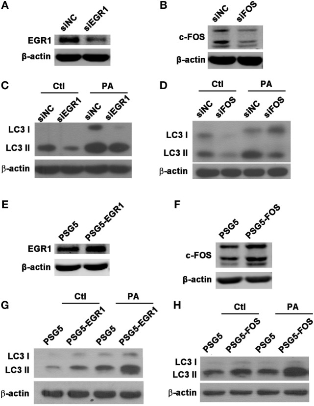Early growth response gene-1 (EGR1) or c-FOS enhanced autophagy in macrophages. (A–H) THP-1 macrophages were transfected with specific siRNA or overexpression plasmid for EGR1 or c-FOS for 24 h, and then infected with Pseudomonas aeruginosa (PA) for 1 h. Knockdown and overexpression effects of EGR1 (A,E) and c-FOS (B,F) were determined by western blot. Protein levels of microtubule associated protein 1 light chain 3 (LC3)-II (C,D,G,H) were tested by western blot in THP-1 macrophages before or after PA infection.