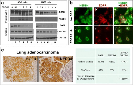 NEDD4 is associated with activated EGFR. a , Co-immunoprecipitation of NEDD4 with activated EGFR in lung cancer cells. Lung cancer A549 or H358 cells were serum-starved for 12 h followed by stimulation with EGF (50 ng/ml) for indicated times. EGFR was immunoprecipitated with anti-EGFR (Mab528) and detected by immunoblotting with anti-EGFR (1005) (top panels). Co-immunoprecipitated NEDD4 was detected by immunoblotting with an anti-NEDD4 (second top panels). The level of EGFR and NEDD4 in the cell lysates was also detected by immunoblotting (middle and second bottom panels). Notice that EGFR in A549 and H358 cells has an EGF-induced degradation. b , Internalized EGFR is co-localized with NEDD4. A549 cells were serum-starved for 12 h followed by stimulation with EGF (50 ng/ml) for 0 or 60 min. The cells were immuno-stained with anti-EGFR (1005) (red) and anti-NEDD4 (green). Bar, 20 μM. c , Co-expression of NEDD4 with EGFR in lung adenocarcinoma tissue. The tissue microarray containing 63 lung adenocarcinoma section samples was immunohistochemically stained with anti-EGFR or anti-NEDD4