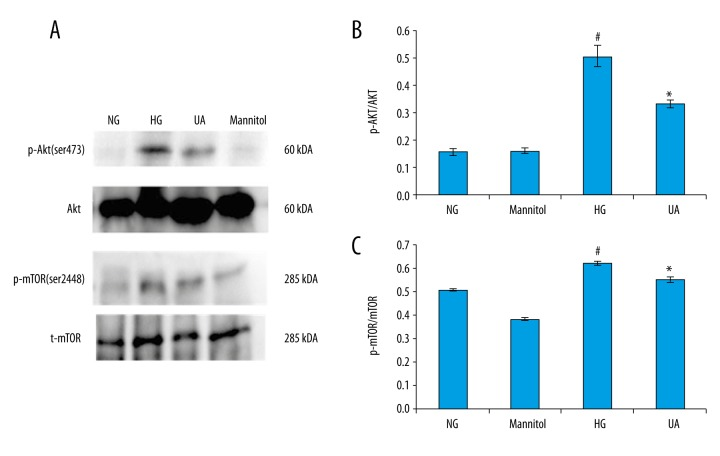 ( A–C ) Western blotting was used to detect PI3K/Akt/mTOR pathway activity in mesangial cells of each group. NG: normal glucose group (5 mmol/L glucose); Mannitol: hypertonic control group (5 mmol/L glucose+24.5 mmol/L mannitol); HG: high glucose group (30 mmol/L glucose); HG+UA: ursolic acid treatment group (30 mmol/L glucose+1.0 mmol/L ursolic acid). # p