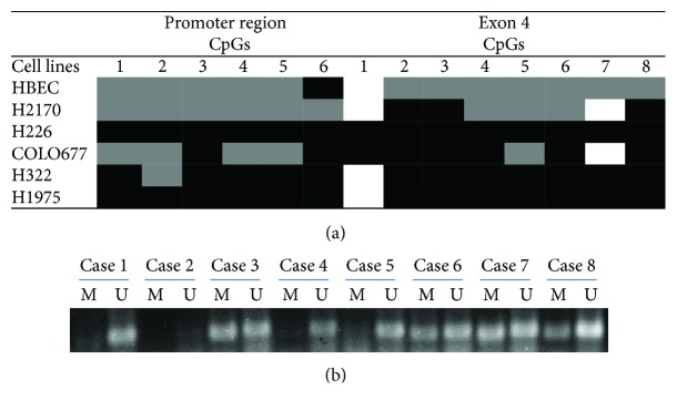 (a) Methylation status of LC3A in 5 lung cancer cell lines and HBEC. Bisulfite sequencing (BS) showed a heterogeneous methylation pattern in the promoter region and exon 4 of the LC3A gene in lung cancer cell lines. White: unmethylated; grey: partially methylated or only one allele is methylated; black: totally methylated or two alleles are methylated. 1–6: 6 CpG sites in promoter region; 1–8: 8 CpG sites in exon 4. (b) Representative results from methylation-specific PCR (MSP) showing that LC3A was unmethylated in cases 1, 4, and 5 while partially methylated in cases 3, 6, 7, and 8. Case 2 was excluded for the statistical analysis (see Supplementary Table 3 ), since no PCR products were observed most probably due to degraded genomic DNA. U: unmethylated; M: methylated.