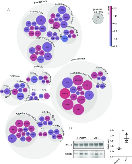 Bubble chart analysis of gene expression changes in human brain with high neurofibrillary tangle load. ( A ) RNA expression datasets from the AMP-AD knowledge portal were assessed for differential expression of the following 14 genes, comparing Braak stages V/VI (B3) to Braak stages 0/I/II (B1): Egr1 , Hmox , Lax , Lgals3 , Met , Plau , Pgf , Atr , Eif4ebp , Hif1an , Mmp9 , Serpine1 , Slc16a3 , and Vegfa . Differentially expressed genes were identified at an FDR of 25% and are listed in Dataset S2 . Data are plotted by brain region. The size of each bubble is determined by the −log10( P value) such that highly significant changes are represented by larger bubbles. The smallest correspond to a P value of 0.051 and the largest 2.9 × 10E-8. The color of each bubble indicates the direction and magnitude of gene expression fold change. Genes from each dataset are shown as separate bubbles—in regions with RNA-seq and microarray data (dorsolateral prefrontal cortex, frontal pole, inferior frontal gyrus, PHG, and superior temporal gyrus), multiple bubbles per gene indicate changes in multiple datasets. NA, nucleus accumbens; OVC, occipital visual cortex; SPL, superior parietal lobe; TP, temporal pole. ( B ) Western blot of cortical homogenates from cases with low neurofibrillary tangle load (Control) versus high neurofibrillary tangle load (AD) confirmed an increase of the Serpine1 protein product PAI-1. <t>Beta-actin</t> is shown for loading control. ** P
