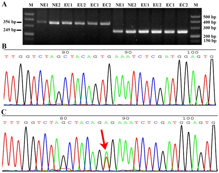 Detection of BRAF gene mutation at exons 11 and 15. (A) Gel electrophoresis of the <t>PCR</t> products of exon 11 and 15 of the BRAF gene. The PCR product size of exon 11 is 356 bp, and that of exon 15 is 249 bp. Part of a sequence chromatogram from the Sanger sequencing of BRAF from (B) a patient and (C) the positive control. The red arrow indicates a BRAF mutation (T1799A) of exon 15 in the BCPAP papillary thyroid cancer cell line. BRAF, B-Raf proto-oncogene, serine/threonine kinase; PCR, polymerase chain reaction; M, <t>DNA</t> marker; NE, normal endometrium; EU, eutopic endometrium of endometriosis; EC, ectopic endometrium of endometriosis.