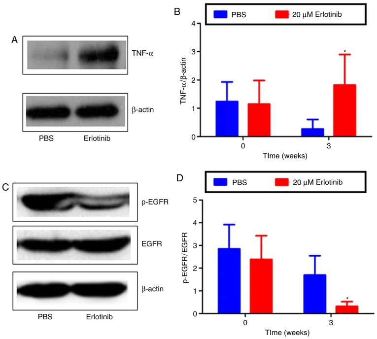 Effect of erlotinib on TNF-α, EGFR and p-EGFR protein expression levels. (A) Following treatment for 3 weeks with either erlotinib or PBS, the protein expression levels of TNF-α were determined by western blot analysis, and the (B) density of the bands was statistically analyzed. (C) Following treatment for 3 weeks with either erlotinib or PBS, the protein expression levels of EGFR and p-EGFR were determined by western blot analysis, and the (D) density of the bands was used to statistically analyze the p-EGFR/EGFR ratio. Data are presented as mean + standard deviation. * P