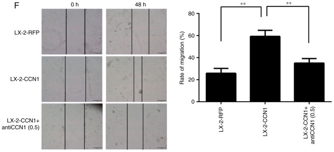 CCN1 activates HSCs and affects cell function. LX-2 cells were infected with adenovirus AdCCN1 or AdRFP, respectively. (A) Following infection for 24 h, western blot analysis was performed to detect the expression levels of CCN1 in LX-2 cells, LX-2-RFP cells and LX-2-CCN1 cells. (B) Following infection for 72 h, α-SMA and collagen I, which are markers of HSC activation and fibrosis, were detected in the LX-2-CCN1 cells. (C) Expression levels of p-β-catenin, β-catenin, cyclin D1, VEGF, CD31 and CD34 were analyzed. CCN1 antibody (0.5 μ g/ml) was used to neutralize CCN1 in control groups. (D) Viability of LX-2-CCN1 cells was analyzed using MTT assays. (E) Following treatment with RCCN1 (0.6 μ g/ml), LX-2 cells were analyzed using MTT assays. CCN1 antibody (0.5 mg/ml) was used in assays. The final concentrations were 0.5 and 2.5 μ g/ml. (F) Monolayer scratch assay was used to analyze the migration of LX-2-CCN1 cells. * P