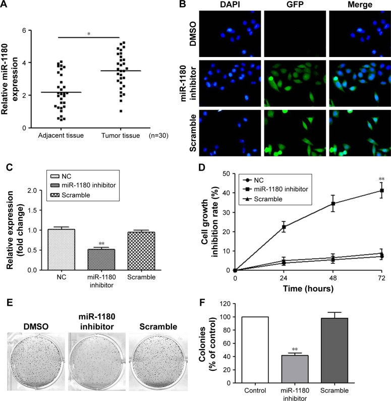 MiR-1180 is upregulated in WT, and the inhibition of miR-1180 suppressed WT cell proliferation. Notes: ( A ) The expression of miR-1180 in WT tissues compared with their adjacent non-cancerous tissues (n=30). ( B ) Transfection efficiency measured by the luciferase assay in the indicated cells. ( C ) qRT-PCR analysis of miR-1180 expression in the indicated cells. ( D ) The effect of miR-1180 inhibitor on the viability of WT as measured by the MTT assay. ( E ) Representative crystal violet-stained cell colonies formed by SK-NEP-1 cell lines, 8 days after inoculation. ( F ) The quantification of colonies of the SK-NEP-1 cells tested with colony formation. Data are presented as mean ± SD from three independent experiments with triple replicates per experiment. * p