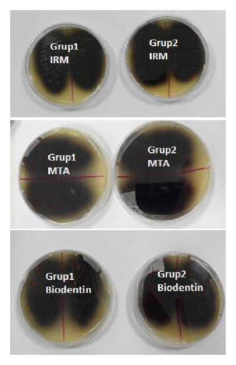 Agar experimentation showing that all specimens were contaminated by E. <t>Faecalis</t> .