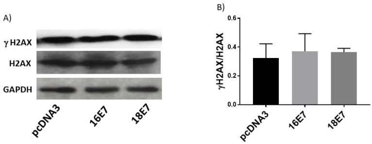 Human papillomavirus (HPV) E7 oncoproteins do not alter phospho-histone 2 AX (γH2AX) protein levels. Representative immunoblot of total H2AX and γH2AX (A) and densitometric analysis (B) of the ratio γH2AX/H2AX in C33A cells 48 h post-transfection. Glyceraldehyde 3 phosphate dehydrogenase (GAPDH) was used as a loading control. Data are expressed as the ratio of relative units between γH2AX and H2AX. Data are presented as the mean±SD, n=3.