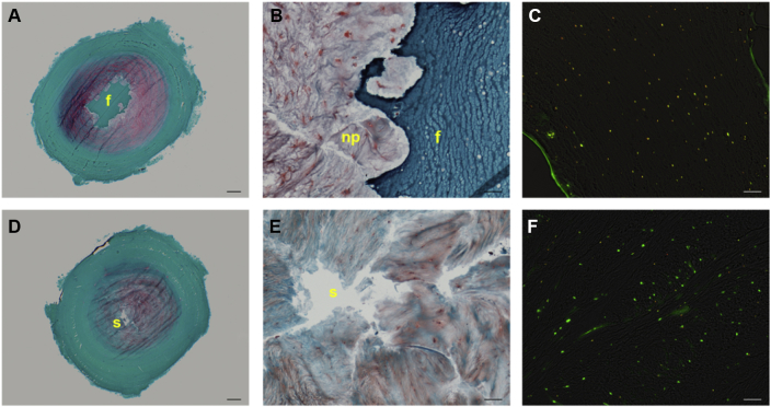 Degenerative-loaded bovine intervertebral discs (IVDs) restored with human mesenchymal stem cells (hMSCs) in (A) and (B) fibrin (D) and (E) and saline solution following 7 days of dynamic culture. (A) and (D) Safranin O/Fast green stained transversal sections overviews (scale bar = 1 mm); (B) and (E) defect/tissue interface magnified views (scale bar = 100 μm); (C) combined phase contrast and fluorescent images of fibrin gel with PKH26-labelled hMSCs stained with calcein AM (yellow = viable hMSC, red = dead hMSC) and (D) nucleus pulposus tissue stained with calcein AM/ethidium homodimer (scale bar = 100 μm) (green = viable disc cell; red/yellow = dead disc cell). Note that fibrin prevents tissue swelling into the nucleotomised space and limits proteoglycan loss, as attested by the stronger Safranin O stain (A vs. D); fibrin can fill irregularly shaped defects (B). Note the homogeneous distribution of viable hMSCs in fibrin (C) and a majority of viable NP cells inside degenerated tissue (F). f = fibrin gel; np = nucleus pulposus s = saline.