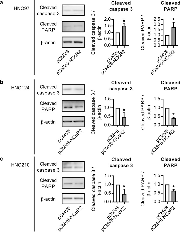 Cleaved caspase 3 and cleaved PARP expression in NCoR2 over-expressing HNO97, HNO124 and HNO210 cells. Cells were transfected with pCMV6-NCoR2 plasmid (or the empty vector pCMV6). Cleaved caspase 3 and cleaved PARP protein levels were evaluated at 24 h post-transfection in HNO97 (a) , HNO124 (b) and HNO210 (c) cells through western blot. β-actin was used as a loading control. Representative western blot detections are shown for each cell line. *significantly different from pCMV6-transfected cells, p