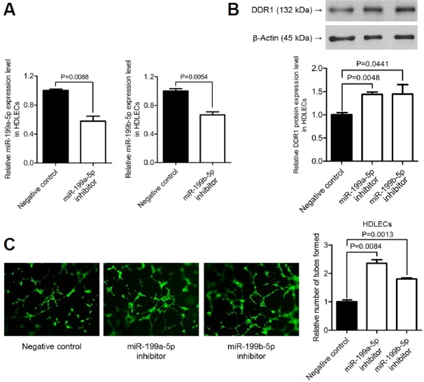 Effect of miR-199a/b-5p inhibitors on HDLEC tube formation (A) Effect of miRNA inhibitors on the level of miR-199a/b-5p. HDLECs were transfected with 20 nM miR-199a/b-5p inhibitors or the negative control inhibitor. After 48 h, cells were harvested for qRT-PCR analysis; three independent experiments were performed, and relative miR-199a/b-5p expression was calculated according to the comparative Ct method, using U6 as an internal control ( n = 3). Error bars indicate SD. (B) Western blot analysis to detect DDR1 expression 48 h after transfection with miR-199a/b-5p inhibitors. Three sets of independent experiments were performed and representative results are shown (upper panel). Anti-β-actin antibody (1:1000) was used to confirm comparable loading. Band densities were quantified using Fujifilm Multi Gauge software version 3.0, and relative DDR1 expression levels are plotted (lower panel). Error bars indicate SD ( n = 3). (C) At 48 h post-transfection, cells (10 5 cells/well) were plated in an ECMatrix-coated eight-well chamber in MV2 medium, containing 10 ng/ml bFGF, 5 ng/ml EGF, and 20 ng/ml IGF-1. To detect the tube formation more clearly, the cells were stained in a media containing 5 μM calcein AM for 1 h. Capillary-like structures within the Matrigel layer formed by HDLECs were photographed after 4–6 h at 50× magnification. Three independent experiments were performed for each setting and representative results are shown at the left panels. Tube formation was quantified using ImageJ software, and the mean +/− SD values are plotted on the right panels ( n = 3).