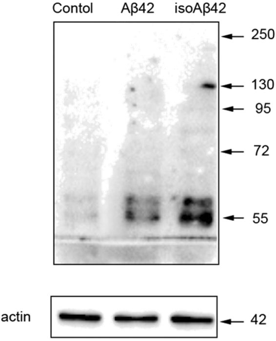 Effects of Aβ42 and isoAβ42 (10 μM, 6 h) treatment on the levels of phosphoserine-containing proteins. After incubation with the amyloid peptides, SH-SY5Y cells were lysed, the proteins were separated using 8% SDS-PAGE, and antibodies against phosphoserine were used to identify phosphoserine-containing protein bands.