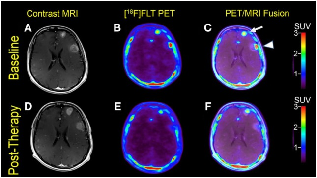 Case #2. Baseline magnetic resonance imaging (MRI) (A) , fluorothymidine (FLT)–positron-emission tomography (PET) (B) , and fused PET/MRI (C) ; follow-up MRI (D) , FLT–PET (E) , and fused PET/MRI (F) at 1 month. Among multiple melanoma brain metastases, the left anterior frontal lobe lesion (arrow) showed a slight interval increase in FLT uptake and size [SUV ratio (SUVR) from 12.6 to 13.5; size from 1.7 to 2.0 cm]; the left lateral frontal lobe lesion (arrowhead) demonstrated interval decrease in FLT uptake from SUVR of 11.3–6.3, while the size remained stable at 2.3 cm. Same T1-weighted MRI parameters as in Figure 1 .