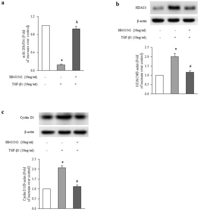 Smad2/3 mediates TGF-β1-induced alterations of miR-206, HDAC4 and cyclin D1. ASMCs were treated with SB431542 (10 μM) for 1 h before stimulation with TGF-β1 (10 ng/ml) for 24 h. ( a ) The level of miR-206 was measured using qRT-PCR. U6 small nuclear RNA served as a loading control (n = 4 per group). ( b ) HDAC4 protein level was analyzed using immunoblotting (n = 4 per group). ( c ) Cyclin D1 protein level was determined using immunoblotting (n = 4 per group). The full-length blots of Fig. 2b and 2c are presented in Supplementary Fig. S1. *P