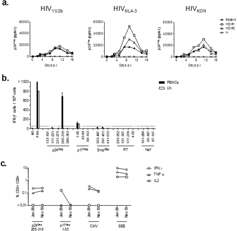 HIV infection and T-cell responses of PBMC from the case patient. (a) In vitro susceptibility to HIV infection in 2009. 9 CD4 + T-cells of the case patient or healthy donors (HD) were PHA-activated and infected in vitro with 100 ng p24 Gag of HIV YU2b (R5-tropic), HIV NL4–3 (× 4-tropic), and HIV KON a primary isolate of the same clade than CRF02_AG isolate. Viral replication was monitored by p24 Gag ELISA during 16 days post-infection (p.i.). (ni = non infected). (b) Ex vivo IFN-γ-ELISpot assay was performed in November 2009 using PBMC and lymph node (LN) cells loaded with 18 HIV-1 pools of 15-mers peptides overlapping by 11 amino acids. Eleven pools covered the three HIV type 1 Gag proteins: three pools for p17 Gag (1–55, 45–99, and 89–143), five pools for p24 Gag (133–187, 177–231, 221–275, 265–319, and 309–363), three pools for the small Gag proteins (Smp Gag) (p2/p7/p1/p6) (353–407, 397–451, and 441–512), four pools corresponding to poly-epitopic RT regions (293–352, 157–187, 177–216, and 4–52), and three pools corresponding to poly-epitopic Nef regions (181–206, 65–107, and 97–147). All results are expressed as specific IFN-γ-producing cells after subtracting the number of SFCs observed with cells alone, without stimulation. The IFN-γ producing HIV-specific CD8 + T cells were first investigated in an ELISpot assay detecting in 2009 significant responses to p17Gag (1–55) in PBMC and lymph node cells (110 SFC/10 6 cells) and to p24Gag (265–319) in PBMC alone (680 SFC/10 6 cells. (c) PBMC obtained in November 2009 were stimulated with the p17Gag 1 to 55 pool or with the p24 Gag 265 to 319 pool that elicited an IFN-γ-ELISpot production. The percentages of CD3 + CD8 + T cells producing IFN-γ, TNF-α or IL-2 were analyzed by intracellular <t>cytokine</t> staining and flow cytometry. The percentages of activated cells not subjected to peptide stimulation were subtracted. The immune-dominant CMV-derived HLA-B*07-restricted epitope (pp65 417 TPRVTGGGAM 426 ), and staphyl