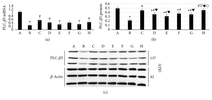 WTHX-Cream can increase <t>PLC-</t> β expression in the DRG of rats. (a) PLC- <t>β</t> 3 mRNA; ((b) and (c)) PLC- β 3 protein. All values given are the mean ± SD. ∗ P