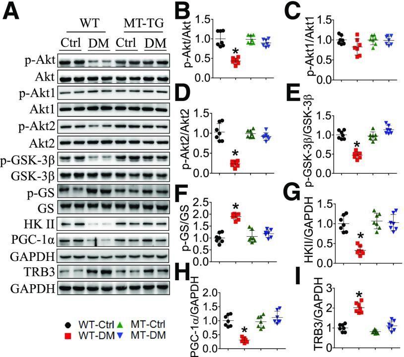 MT prevents diabetic downregulation of cardiac Akt functions along with inhibition of TRB3 in STZ-induced type 1 diabetes. At 3 months after diabetes onset, WT and MT-TG mice were sacrificed, and cardiac tissue was used to analyze the phosphorylation of total Akt ( A and B ), Akt1 ( A and C ), Akt2 ( A and D ), GSK-3β ( A and E ), and GS ( A and F ) and the expression of HK II ( A and G ), PGC-1α ( A and H ), and TRB3 ( A and I ) by Western blot. Results were normalized to the WT controls. GAPDH was used as loading control. n = 7 for each group. Data shown in graphs represent the means ± SD. * P