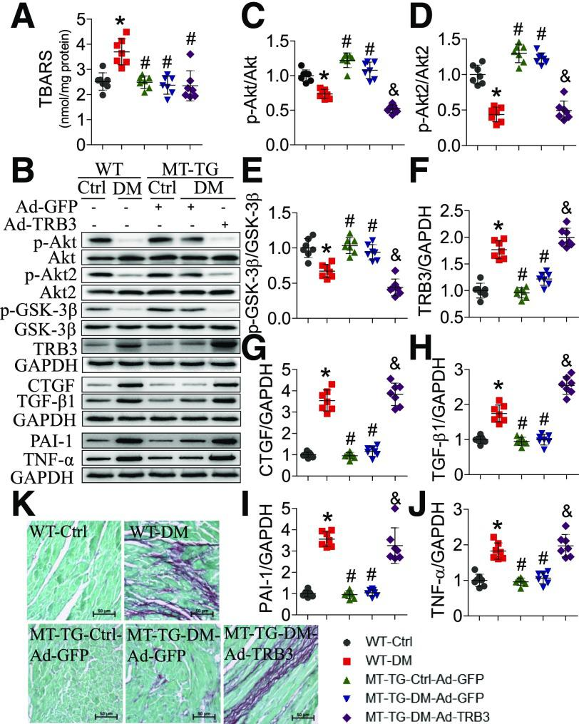 Adenovirus-mediated TRB3 overexpression abolishes MT's preservation of cardiac Akt signaling and prevention of cardiac damage in STZ-induced type 1 diabetes. The efficacy of the intramyocardial gene delivery was validated in 2-month-old MT-TG mice in a pilot study ( Supplementary Fig. 3 ). Two months after diabetes onset, Ad-TRB3 or Ad-GFP control was delivered by myocardial injection. One month after intramyocardial injection, these mice were sacrificed, and cardiac tissues were collected following cardiac function examination by echo ( Table 1 ). Cardiac oxidative stress was detected by a TBARS assay ( A ), and the phosphorylation of total Akt ( B and C ), Akt2 ( B and D ), and GSK-3β ( B and E ) and the expression of TRB3 ( B and F ), CTGF ( B and G ), TGF-β1 ( B and H ), PAI-1 ( B and I ), and TNF-α ( B and J ) were detected by Western blot. GAPDH was used for loading control. Results were normalized to the WT-Ctrl. The cardiac collagen accumulation was detected by Sirius Red staining ( K ). n = 7. Scale bars: 50 μM. Data shown in graphs represent the means ± SD. * P