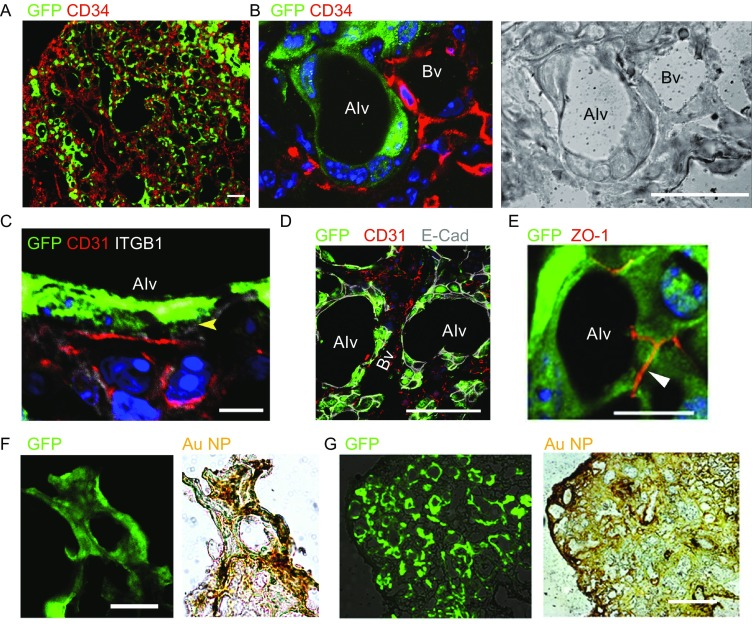 Regenerated alveoli with functional epithelium-capillary system . (A) Transplanted SOX9 + BCs (anti-GFP) and capillary endothelium marker (anti-CD34). Scale bar, 100 μm. (B) Confocal image of SOX9 + BCs regenerated alveoli (Alv) and the neighboring capillary blood vessel (Bv). Left, immunofluorescence; right, bright field. Scale bar, 20 μm. (C) Confocal image showing the basement membrane (ITGB1 + , white color, arrowhead indicated) between regenerated alveoli epithelium and capillary endothelium (CD31 + ). Scale bar, 10 μm. (D) Confocal image showing the cell adherens junction (E-cadherin + , white color) between regenerated alveoli epithelial cells. Scale bar, 20 μm. (E) Confocal image showing the cell tight junction (ZO-1 + ) between regenerated alveoli epithelial cells. Scale bar, 20 μm. (F) Direct fluorescence image of the transplanted GFP-labeled SOX9 + BCs (green) and bright-field image of tail vein delivered gold nanoparticles (AuNPs) of the same region (brown). Scale bar, 100 μm. (G) Direct fluorescence image of the transplanted GFP-labeled SOX9 + BCs (green) and bright-field image of intratracheally delivered gold nanoparticles (AuNPs) of the same region (brown). Scale bar, 100 μm