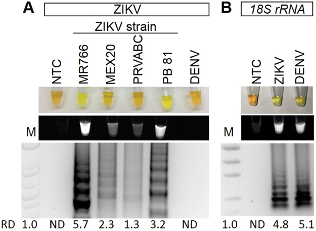 ZIKV and 18S rRNA RT-LAMP in simulated urine samples. Urine samples were spiked with either different strains of ZIKV or DENV and subjected to a ZIKV ( A ) or 18S rRNA ( B ) specific RT-LAMP reaction then visualized by addition of SYBR Green I by eye (upper panel), green fluorescence (middle panel), or gel electrophoresis (bottom panel). Lane M: Low DNA Mass Marker (ThermoFisher Scientific); NTC: No template control (negative control). Relative density (RD) of the entire bands for a column relative to the DNA Mass Marker are indicated below the corresponding lane. Lanes that did not have any detectable bands over background are reported as not detectable (ND).