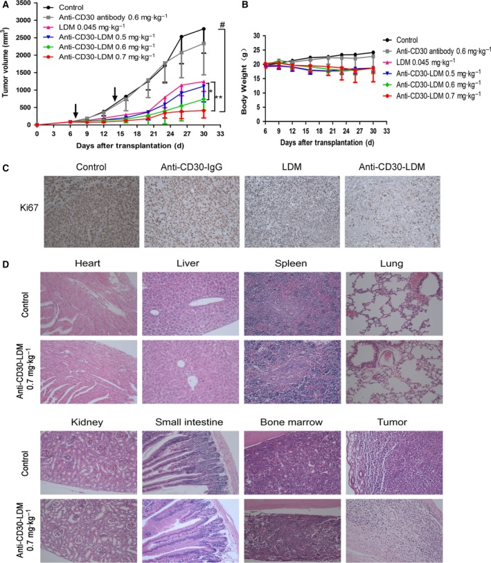 In vivo efficacy of anti‐CD30‐LDM against Karpas299 xenograft model. (A) The antitumor effects of anti‐CD30‐LDM in NOD/SCID mice bearing Karpas299 xenografts ( n = 6). The agents were administered at doses indicated in the figure on a Q7D × 2 schedule, and arrows indicate days of administration. * P