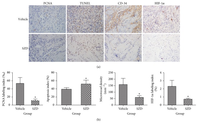 <t>Immunohistochemical</t> detection of makers in endometriotic lesions. (a) Representative immunohistochemical images of ectopic endometrium from vehicle- and Shaofu Zhuyu decoction- (SZD-) treated rats are shown. Sections were stained with <t>PCNA</t> to detect proliferating cells, TUNEL assay to confirmed apoptosis, CD-34 to detected microvessels, and HIF-1 α to evaluate hypoxia status; magnification: ×100. (b) PCNA-positive (‰), apoptosis index (%), microvessel density (mm −2 ), and HIF-1 α -positive (%) cells in endometriotic lesions after treatment, analyzed with quantitative analysis of immunohistochemical sections. Mean ± standard deviation (SD). SZD group ( n = 8) versus vehicle group ( n = 7): ∗ P