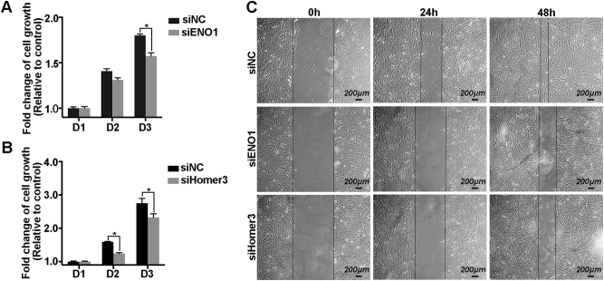 Transiently suppressed ENO1 and Homer3 inhibits WBP2-mediated U251 cell overgrowth and metastasis. a and b MTT assay was performed to test the effect of ENO1 and Homer3 silenced by the increased cell proliferation ability induced by WBP2 overexpression. c Ablation of ENO1 and Homer3 reduced the healing rates in EGFP-WBP2 group cells. Scale bar, 200 μm. siNC, cells transfected with negative control siRNA; siENO1, cells transfected with ENO1-siRNA; siHomer3, cells transfected with Homer3-siRNA. * P