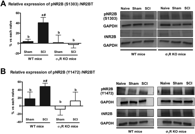 Spinal Tyr1472 and Ser1303 phosphorylation of N-methyl-D-aspartate (NMDA) receptor NR2B subunit at day 28 after spinal cord injury (SCI) in wild type (WT) and sigma-1 receptor (σ1R) knockout (KO) mice. ( A ) Quantification and representative immunoblots of total NR2B, pS1303NR2B and glyceraldehyde 3-phosphate dehydrogenase <t>(GAPDH).</t> ( B ) Quantification and representative immunoblots of total NR2B, pY1472NR2B and GAPDH. a–b: groups not sharing a letter are significantly different, p