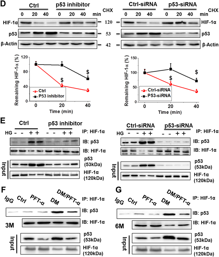 p53 controls HIF-1α protein expression at 3 and 6 months after diabetes onset a, b The mRNA and protein expression of HIF-1α examined by qRT-PCR ( a ) and western blot ( b ) analysis of heart tissues at 3 and 6 months after diabetes onset. c Immunofluorescence staining using anti-HIF-1α antibody (red), DAPI for nuclei (blue), and phalloidin for actin fibers (green) of heart tissues at 6 months after diabetes onset (Scale bar = 25 µm). d A time course of 100 μM cycloheximide (CHX) treatment used to analyze the HIF-1α half-life in primary cardiomyocytes with or without PFT-α or p53-siRNA. β-actin used as loading control. (E-G) Protein-protein interaction between p53 and HIF-1α after PFT-α or p53-siRNA treatment in both primary cardiomyocytes e and heart tissues at 3 f and 6 g months after diabetes onset demonstrated by <t>immunoprecipitation</t> in the presence of the proteasomal inhibitor MG132. Data expressed as mean ± SD of three independent experiments. * P