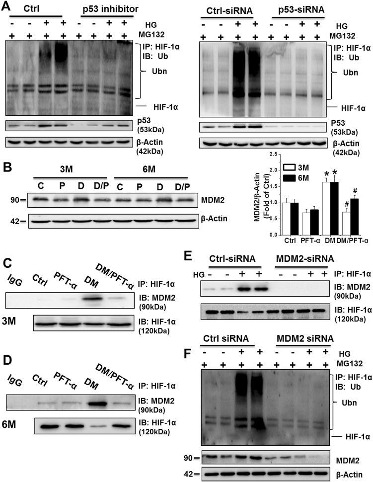 p53 facilitates HIF-1α ubiquitination and consequent proteasomal degradation in an MDM2-dependent manner a HIF-1α polyubiquitination examined by immunoprecipitation and western blot of primary cardiomyocytes in the presence of MG132 with or without PFT-α or p53-siRNA treatment. b The MDM2 protein expression detected by western blot analysis. c, d The protein-protein interaction between MDM2 and HIF-1α detected at 3 ( c ) and 6 ( d ) months after diabetes onset by immunoprecipitation in vivo. e The protein-protein interaction between MDM2 and HIF-1α detected by immunoprecipitation in primary cardiomyocytes after transfection with Ctrl-siRNA or MDM2-siRNA. f HIF-1α polyubiquitination examined by immunoprecipitation and western blot in primary cardiomyocytes after transfection with Ctrl-siRNA or MDM2-siRNA. Data expressed as mean ± SD of three independent experiments. * P