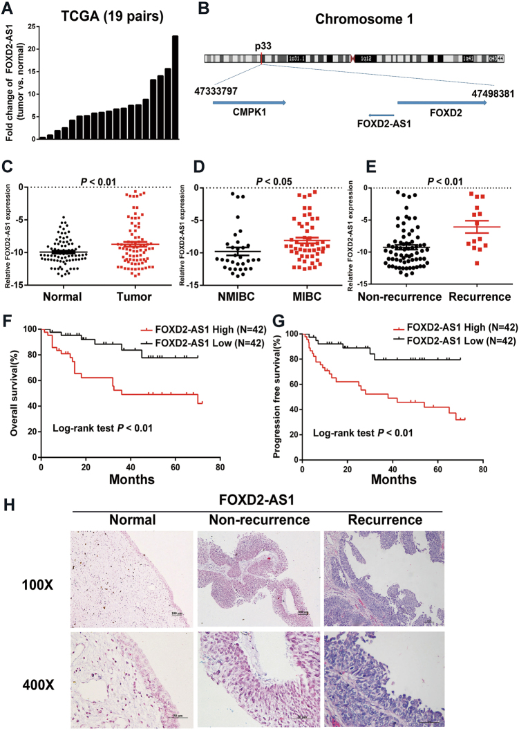 Expression and clinical value of FOXD2-AS1 in bladder cancer. a Expression of FOXD2-AS1 in 19 pairs of TCGA cancer and adjacent noncancerous samples indicated that FOXD2-AS1 is obviously up-regulated in bladder cancer. b The location of FOXD2-AS1 on chromosome. c qRT-PCR performed in 84 cases showed that FOXD2-AS1 expression was significantly increased in bladder cacer tissues compared to adjacent noncancerous tissues ( p