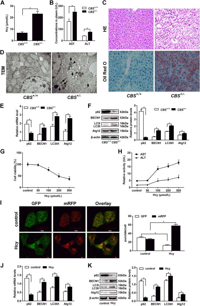 Hcy induces hepatic autophagy in CBS +/- mice. Eight to 10 weeks old cystathionine b-synthase ( CBS ) heterozygous knockout mice ( CBS +/− ) were fed with regular mice chow and water ad libitum. Human hepatocytes HL-7702 were treated with L-Hcy (100 μmol/L) for 24 h. a The concentration of Hcy in plasma of mice was measured by automatic biochemical analyzer. b Contents of ALT and AST in serum of CBS +/- mice were analyzed using automatic biochemical analyzer. c Hematoxylin and eosin (H E) and Oil Red O staining of CBS +/- mice liver. d Transmission electron microscope (TEM) was used to analyse cell autophagy in liver tissues of CBS +/− mice. The arrows indicate the double-membrane vacuoles digesting organelles or cytosolic contents. e and f mRNA and protein expression of p62, BECN1, LC3 and Atg12 in the liver tissue of CBS +/− mice by qRT-PCR and western blot, respectively. g Hepatocytes were treated with different concentrations of Hcy (50–500 μmol/L) for 24 h before MTT assay. h The activities of AST and ALT in hepatocytes after treatment with Hcy were detected by ELISA. ( I ) Confocal fluorescent microscopy analysis of hepatocytes overexpressing mRFP-GFP-LC3, treated with 100 µmol/L Hcy for 24 h. Quantification of mean red and green fluorescent puncta of at least 10 cells per condition is shown. The efficiency of transfection was also shown. ( J ) and ( K ) mRNA and protein expression of p62, BECN1, LC3 and Atg12 in hepatic cells treated with 100 µmol/L L-Hcy by qRT-PCR and western blot. Densitometry analysis of the proteins was performed for each sample (mean ± s.d.). * P