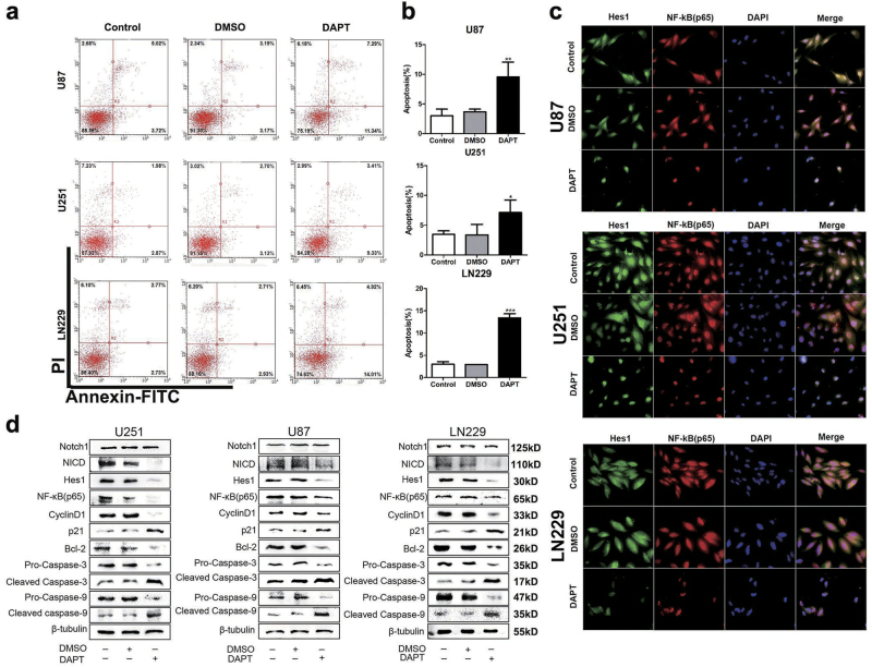 Effect of DAPT on NF-κB(p65) expression in glioma cells a , b DAPT-induced apoptosis of glioma cells in vitro. The percentages of apoptotic cells were significantly increased after DAPT treatment. c Immunofluorescence shows Hes1 and p65 expression in glioma cells after DAPT treatment. The scale bar corresponds to 20 µm. d After DAPT treatment, the Notch1, NICD, Hes1, p65, cylinD1, p21, Bcl-2, pro-caspase-3, cleaved caspase-3, pro-caspase-9 and cleaved caspase-9 expression levels were detected by western blotting. β-Tubulin was used as a loading control. * P
