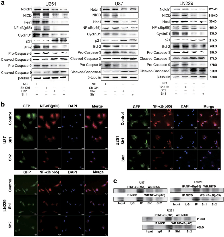 Notch1 regulates the NF-κB(p65) pathway a Following transfection of U87, U251, and LN229 cells with shRNA, the expression levels of Notch1, NICD, Hes1, p65, cylinD1, p21, Bcl-2, pro-caspase-3, cleaved caspase-3, pro-caspase-9, and cleaved caspase-9 were detected by western blotting. <t>β-Tubulin</t> was used as a loading control. b Immunofluorescence staining showed the distribution of NF-κB(p65) in U87, U251, and LN229 cells after shRNA treatment. c Three different cell lysates were denatured and then immunoprecipitated with antibodies targeting either NICD or NF-κB(p65). Both the forward and reverse immunoprecipitation showed that NICD bound to NF-κB(p65). Whole immunoglobulin (IgG) was used as a control antibody in the immunoprecipitation assays