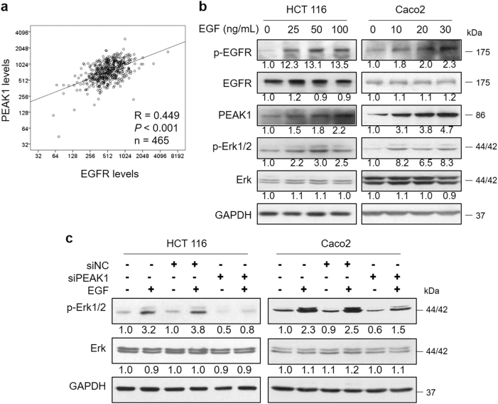 EGFR signaling increases the expression of PEAK1. a The correlation between EGFR and PEAK1 expression was evaluated by Spearman's method. b Western blot analyses of EGFR, PEAK1 and Erk in total extracts from CRC cells treated with EGF for 1 h. c CRC cells were treated with EGF, followed by siPEAK1 transfection, and then western blot was performed to analyze the Erk levels. These experiments were repeated three times