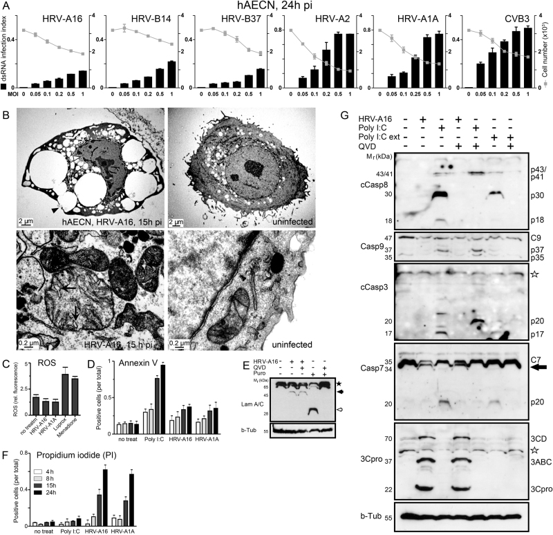 Necrotic cell death rather than apoptosis in HRV-A16-infected primary human nasal epithelial cells. a Dose-dependent infection of hAECN with various A- and B-type rhinoviruses (HRV-A16, HRV-B14, HRV-B37, HRV-A2, HRV-A1A), and CVB3 and correlation with cell number. Values are means ± SD, n = 3. b Electron micrographs of hAECN infected with HRV-A16 (MOI 1) or treated with poly I:C or puromycin for 15 h, or uninfected cells. Proximity of vesicular structures with the cell surface indicated by black arrowheads, and swollen mitochondrial cristae in infected cells highlighted by arrows. c ROS production of HRV-A16 or HRV-A1A (MOI 1) infected cells 24 h pi, compared to luprox- (100 μ m , 1 h) or menadione (100 μ m , 1 h)-treated cells. d FACS analysis of annexin V stainings of hAECN infected with HRV-A16 or HRV-A1A (MOI 1) for 4, 8, 15 or 24 h and comparison with poly I:C-treated cells. Values are means from approximately 10,000 cells analyzed ± SD, n = 3. e Western blots against lamin A/C and beta-tubulin from lysates of hAECN cells infected with HRV-A16 (MOI 1, 15 h) or treated with puromycin (5 µg/ml, 15 h) with or without pan-caspase inhibitor QVD (5 µ m ). M r denotes relative molecular weight in kDa. f FACS analysis propidium iodide (PI) stainings of hAECN infected with HRV-A16 or HRV-A1A (MOI 1) for 4, 8, 15 or 24 h and comparison with poly I:C-treated cells. Values are means from approximately 10,000 cells analyzed ± SD, n = 3. g Western blot analysis of caspase 3, 7, 8, 9 activations in hAECN after infection with HRV-A16 (MOI 1, 15 h), poly I:C transfection (5 μg/ml) or external poly I:C addition (ext, 50 μg/ml). Arrow highlights virus-induced caspase-7 processing product; undefined antibody background is indicated by a star. Infection is indicated by blotting against 3Cpro using beta-tubulin as a loading control.