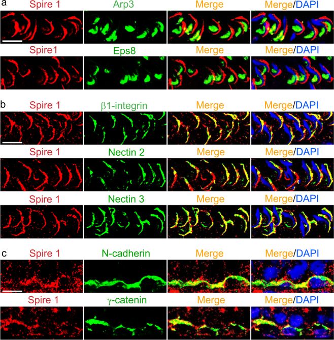 Spire1 is a component of apical and basal ES in the seminiferous epithelium of adult rat testes. a Dual-labeled immunofluorescence (IF) analysis of Spire1 (red fluorescence) with two ES regulatory proteins Arp3 (green fluorescence) and Eps8 (green fluorescence) at stage VII to early VIII tubules. Since Arp3 and Eps8 were mostly expressed at the concave side of spermatid heads as bulb-like structures, only partial localization with Spire 1 were detected because Spire 1 only weakly expressed at this site but robustly expressed at the convex side of spermatid heads. Scale bar, 20 µm, applies to other micrographs. b Dual-labeled IF analysis showed almost superimposable co-localization of Spire 1 (red fluorescence) with apical ES proteins (green fluorescence) β1-integrin (Sertoli cell-specific), nectin 2 (expressed by both Sertoli cells and spermatids) and nectin 3 (elongated spermatid-specific) in stage VII to early VIII tubules since these apical ES proteins also expressed predominantly at the convex side of spermatid heads. Scale bar, 20 µm, applies to other micrographs. c Dual-labeled IF analysis illustrated partial co-localization of Spire 1 (red fluorescence) with basal ES/BTB proteins (green fluorescence) N-cadherin and γ-catenin at the BTB site. Scale bar, 20 µm, applies to other micrographs