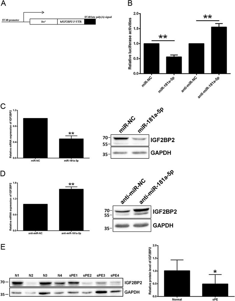 IGF2BP2 is directly inhibited by miR-181a-5p a Construction of a pGL3-Control luciferase vector containing the full-length IGF2BP2 3ʹ-UTR. b The effects of miR-181a-5p mimic and inhibitor on the luciferase activity of the IGF2BP2 WT 3ʹ-UTR reporter were measured. c The IGF2BP2 mRNA and protein levels were both diminished by miR-181a-5p overexpression in HTR-8/SVneo cells. A representative western blotting image with the molecular weight markers depicted on the left in kDa is shown. d The IGF2BP2 mRNA and protein levels were both elevated upon treatment of the miR-181a-5p inhibitor in HTR-8/SVneo cells. A representative western blotting image with the molecular weight markers depicted on the left in kDa is shown. e IGF2BP2 protein level was assessed by western blotting in the 10 paired severe pre-eclamptic placentas and normal placentas mentioned in Fig. 1a . A representative western blotting image of four paired placentas is shown, and the molecular weight markers are depicted on the left in kDa. IGF2BP2 protein level was statistically analyzed by quantitating the intensity of the IGF2BP2 bands relative to that of the corresponding GAPDH ones. N normal pregnancy, sPE severe pre-eclampsia. The results are expressed as the mean ± SD based on at least three independent experiments. * P
