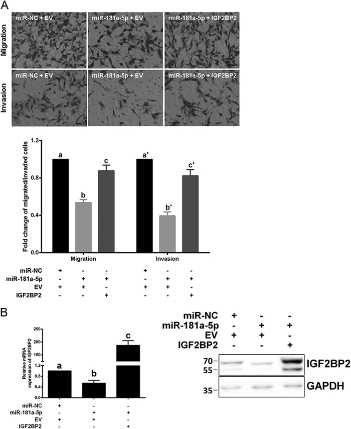 miR-181a-5p suppresses HTR-8/SVneo cell invasion and migration via directly inhibiting IGF2BP2 a Restoring IGF2BP2 expression partially reversed the inhibitory effects of miR-181a-5p on HTR-8/SVneo cell invasion and migration. Representative fields of invaded/migrated cells (at 200× original magnification, bar = 10 μm) are shown. b The IGF2BP2 mRNA/protein levels were examined after IGF2BP2 restoration. A representative western blotting image with the molecular weight markers depicted on the left in kDa is shown. The results are expressed as the mean ± SD based on at least three independent experiments. The values with diverse letters are significantly different ( P